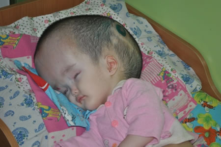 Dina is another abandoned baby that lives in a foster home. She was born with malformation of the brain and hydranencephaly at the stage of decompensation.